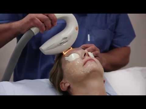 Leliminazione di pigmentary posiziona su un corpo il laser il prezzo