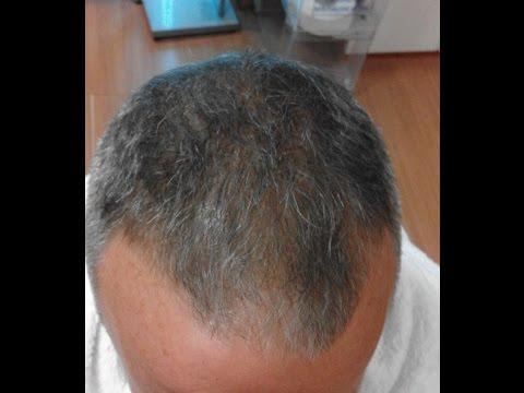 Quanti è possibile fare maschere per capelli in una settimana
