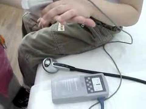 I sintomi della sindrome di ipertensione portale