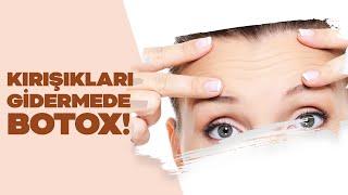 Botox ile yüzde hangi çizgiler tedavi edilir