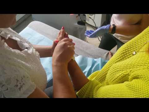 Jak leczyć guzek na nodze na palcu