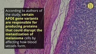 A single gene variation may determine if melanoma metastasizes