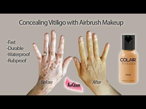 Les cosmétiques pour la personne contre les taches de pigment