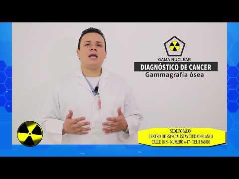 Terapia farmacológica en el cáncer de próstata