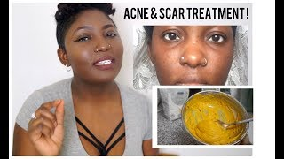 Diy turmeric mask does it work most popular videos turmeric face mask did this in just 7 days diy treatment for scars and solutioingenieria Choice Image