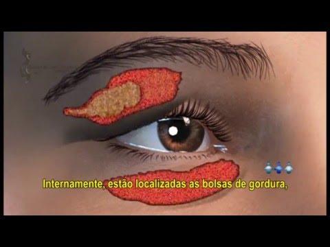 Etapas de dermatite atopic