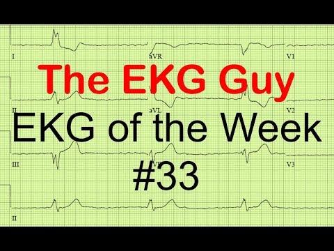 EKG of the Week #33