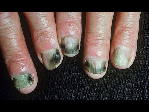Nail Treatments in Ivanovo