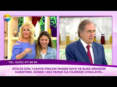 SİVİLCELERE KARŞI DOĞAL ELMA SİRKESİ+MADEN SUYU KÜRÜ ~ Şifaya vesile Saraçoğlu