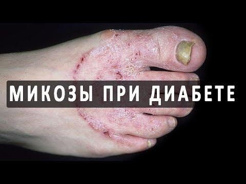 Микозы при диабете и особенности их течения