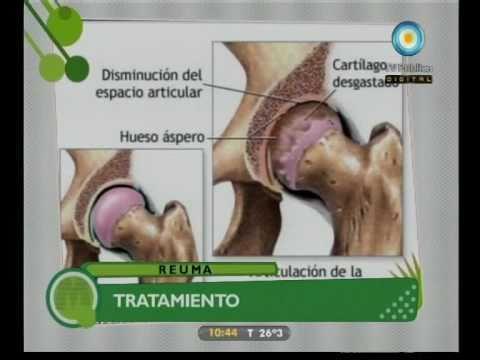 Artrózisos kezelés homeopátia
