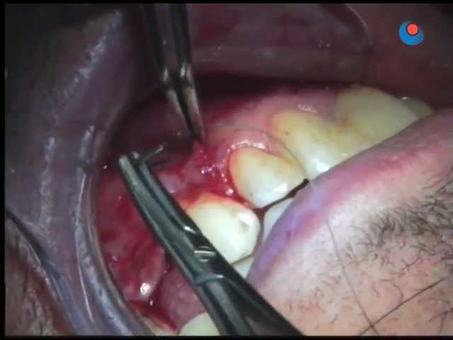 Bone graft (edentulous area) - 8