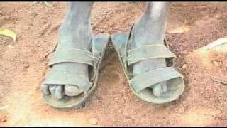 Leprosy - In Sudan
