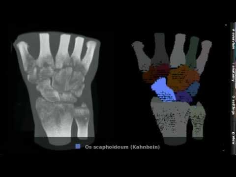 Volksmedizin zur Heilung Knie