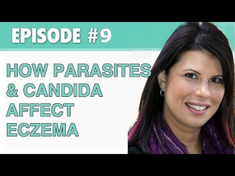 Lexemple des parasites accidentels
