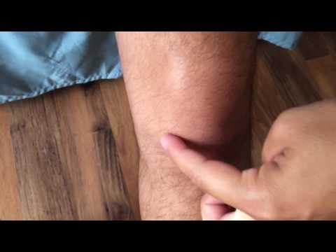 Cómo tratar higroma en la articulación de la rodilla