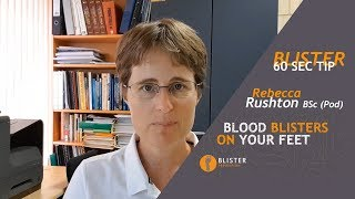 #9 Blood Blisters On Feet - Why Blood Enters The Blister - The Importance Of Pressure Management