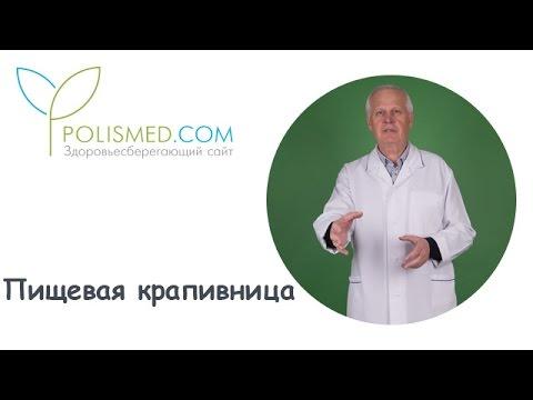 Пищевая крапивница: причины, диагностика, лечение, осложнения, диета