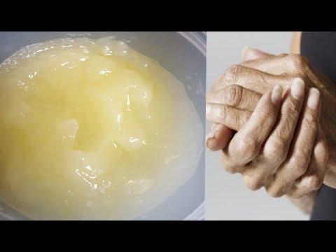 Cream ng pigment spot Eisenberg