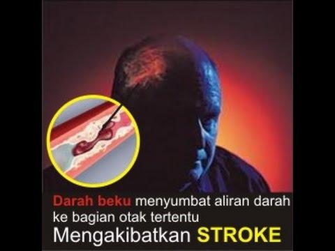 Video Cara menyembuhkan Sakit Stroke | 082137868186 | Tanpa Operasi