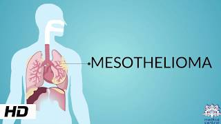 MESOTHELIOMA, Causes, Signs and Symptoms, Diagnosis and Treatment.