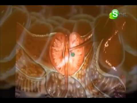 Fattori prognostici di cancro alla prostata