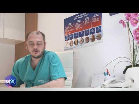 Varicoză la care medicul să contacteze