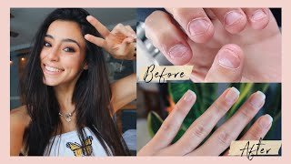 How I Stopped Biting my Nails for GOOD!!