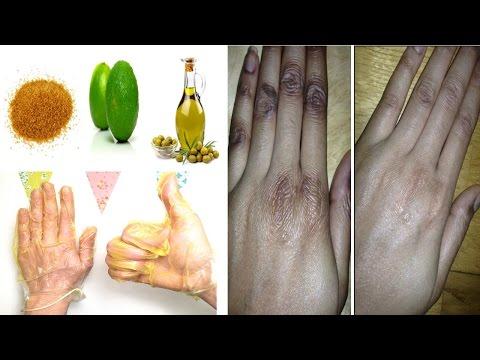 Les souillures de liode sur la peau