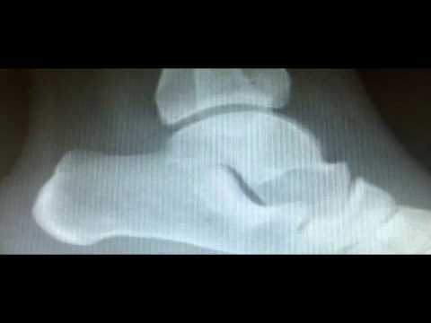 Mal di schiena dopo epiduralny anestesia