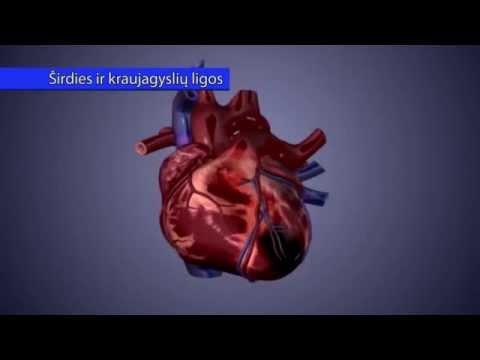 Mankštos širdies sveikatos nauda