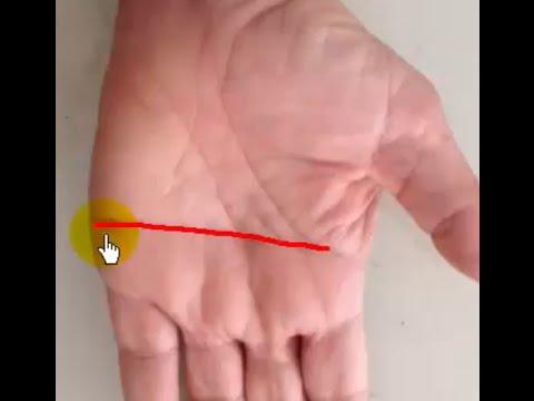 รักษากระแทกบนนิ้วหัวแม่เท้า