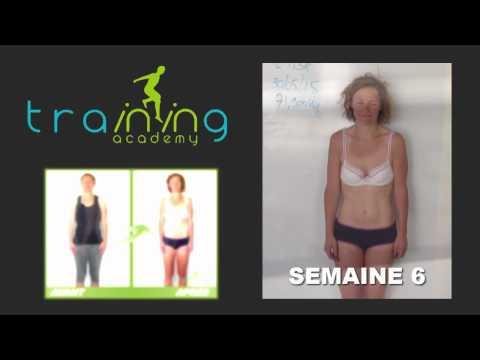 La perte de poids peut-elle causer la tmj