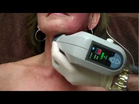 Exilis on Face & Neck for Skin Tightening with Dr. Seiler