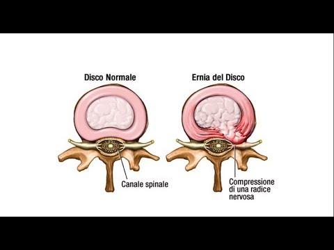 Risonanza magnetica della parte cervicale del cervello