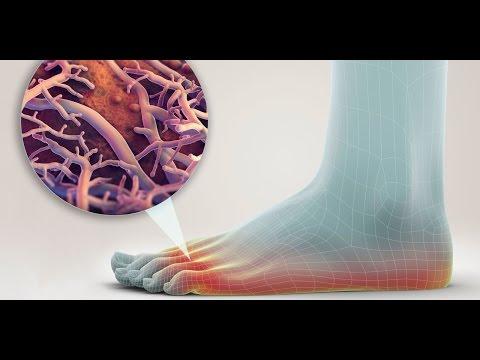 Die ergebnisreiche Behandlung gribka die Beine