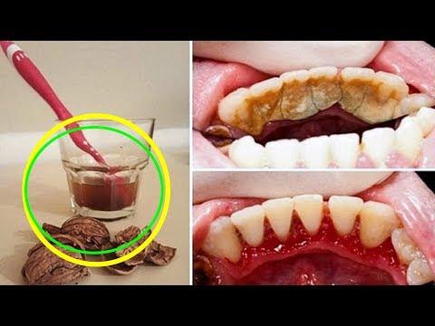 Как удалить зубной камень в домашних условиях, просто.