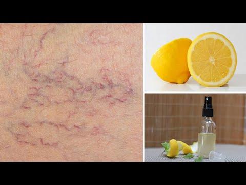 Consecințele tratamentului cu laser a varicozei