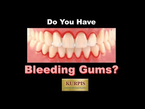 Video Bleeding Gum, what you should know!!!