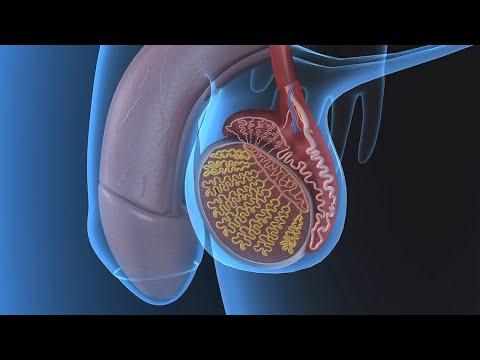 Излечимые стадии рака простаты