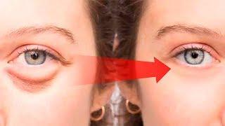 How to Get Rid of Puffy Eyes, Swollen Eyelids & Dark Circles