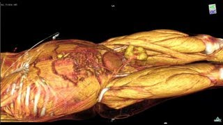 Whole Body CT scan  with contrast media