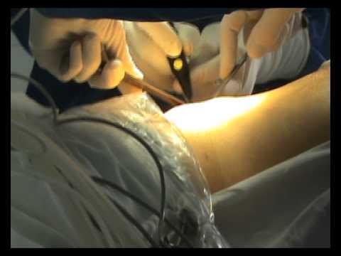 Hiperplazia inițială etapă de prostată