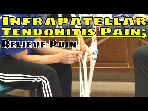 Varicosity artrosis kezelés