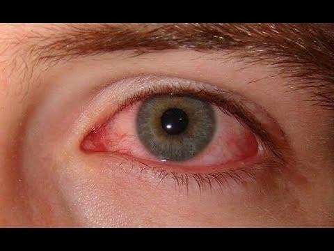 ★Заболевания глаз указывают на проблемы со здоровьем. Эти 8 признаков нельзя игнорировать.