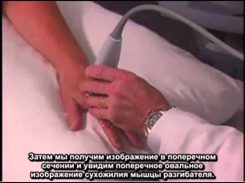 Порядок выполнения: ультразвуковое исследование кисти руки