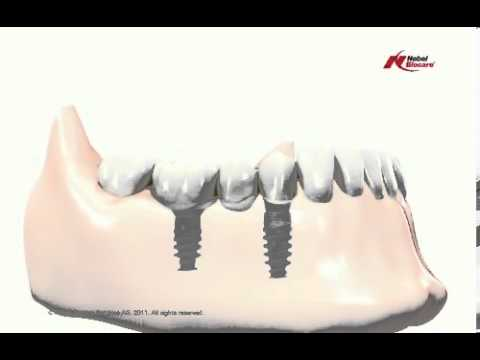 Informational-Video-about-Implant-Prothodontics-in-India