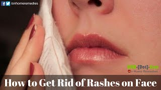 How to Get Rid of Rashes Fast | Home Remedies for Rashes on Face