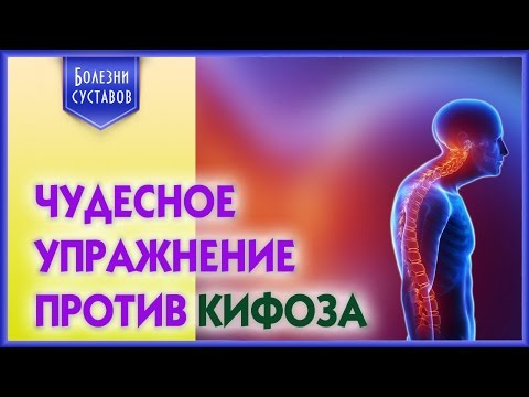 Упражнения от сколиоза 2 степени позвоночника