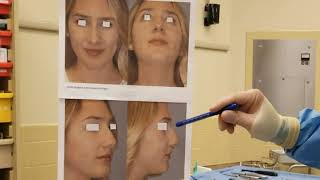 Dr. Jabor - Upper Blepharoplasty and Forehead Lift